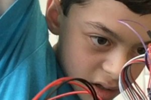 13 Year Old Boy Builds Device To Help Mate, Struck By Lightning, Speak Again 11