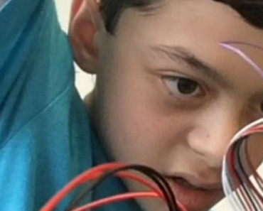 13 Year Old Boy Builds Device To Help Mate, Struck By Lightning, Speak Again 3