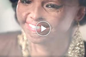 This Ad Featuring An Acid Attack Survivor Will Make You Rethink The Meaning Of Beauty 11