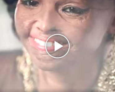 This Ad Featuring An Acid Attack Survivor Will Make You Rethink The Meaning Of Beauty 3