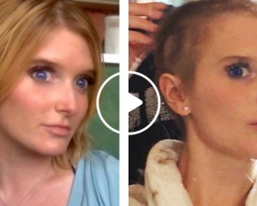 Girl Explains The Struggle Of Losing Her Hair 1