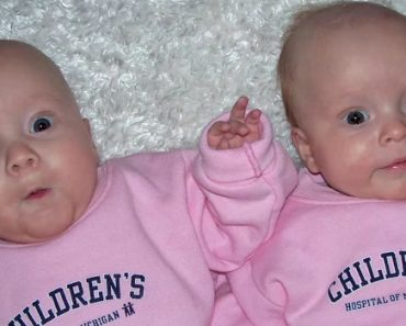 Mom Gives Birth To Twin Baby Girls. 2 Months Later, Doctors Look At Their Bellies And See It... 2