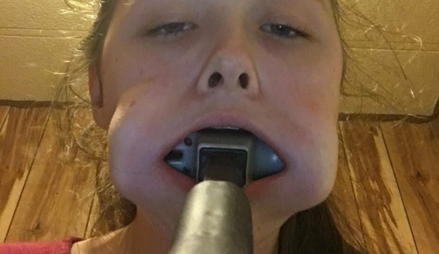 Teen Gets Hammer Stuck In Mouth, Asks Twitter For Help 1