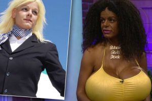 White Woman Claims To Be Black After Getting Injections To Change Skin Color! 9