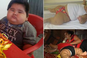 10 Month Old Baby Who Is Constantly Hungry Weighs The Same As A Nine-Year-Old 12