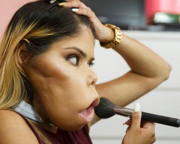 Woman With Facial Tumor Beats Odds, Becomes Youtube Star With Her Own Beauty Tutorials 2