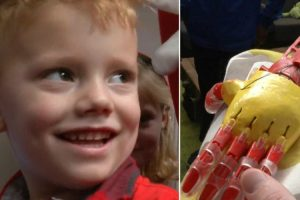 4-Year-Old Gets 3D-Printed Prosthetic Arm in Ironman Colors 10