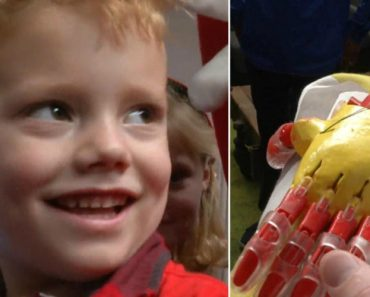4-Year-Old Gets 3D-Printed Prosthetic Arm in Ironman Colors 3