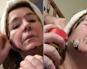 Man Sprays WD40 To Remove Wife's Peel Off Mask Stuck To Skin 9
