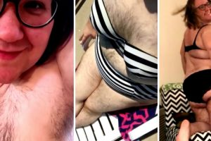 Woman Embraces Extreme Body Hair After Life-Changing Accident 11