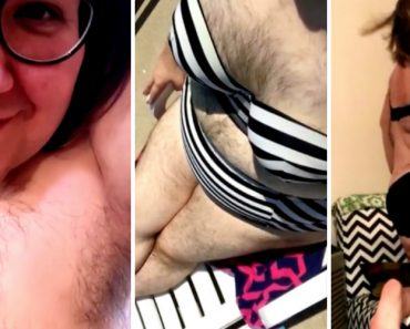 Woman Embraces Extreme Body Hair After Life-Changing Accident 7