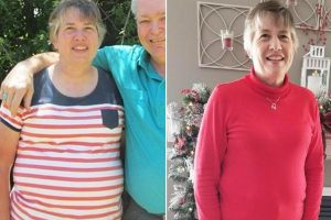 Woman Struggling to Lose Weight Learns She Has 20-Pound Tumor in Her Abdomen 10