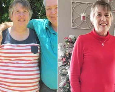 Woman Struggling to Lose Weight Learns She Has 20-Pound Tumor in Her Abdomen 1