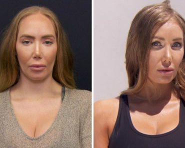 Woman Unhappy With Forehead Size Gets Reduction Surgery 6