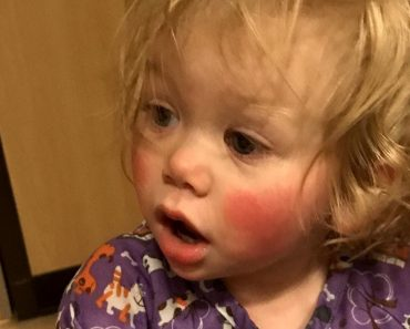 Meet 1-Year-Old Who's Allergic to Tears 1