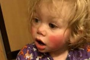 Meet 1-Year-Old Who's Allergic To Water And Even Her Own Tears! 11