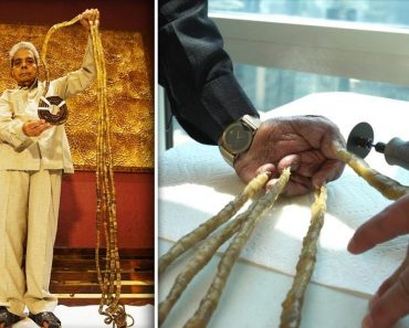 Indian Man With World's Longest Fingernails Flies to New York to Have Them Cut 9