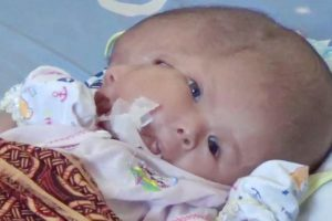 Parents Pray for Miracle After Their Baby Is Born With 2 Faces 12